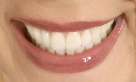 """Современное протезирование зубов в """"Анатомии улыбки"""""""